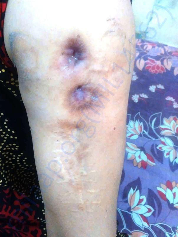 Left arm - damage
