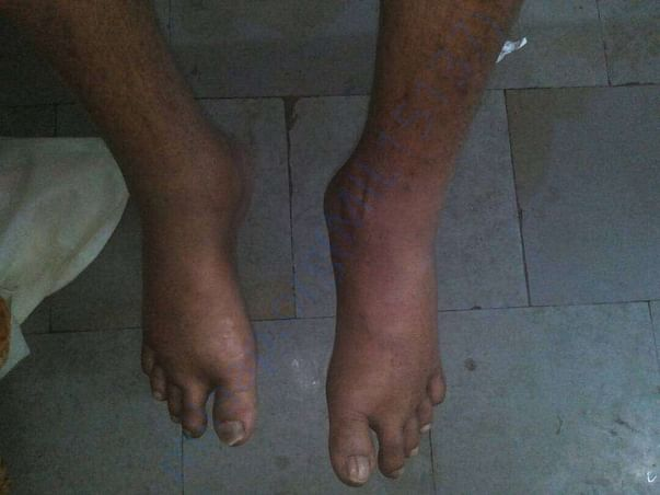 Swelled limbs because of ckd