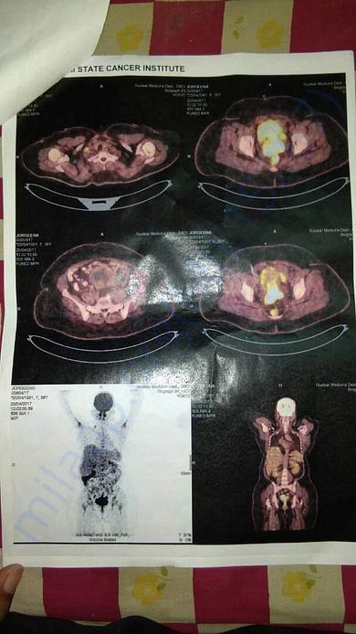 Cancer scan report