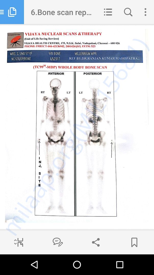 Bone test