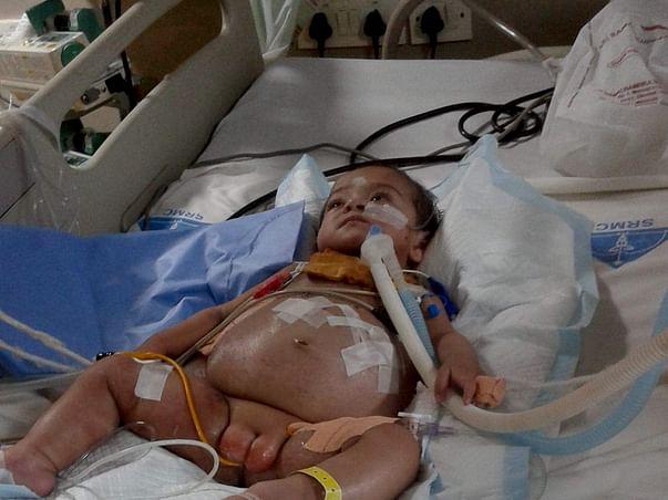 Save Baby Akshita Chhabra Survive