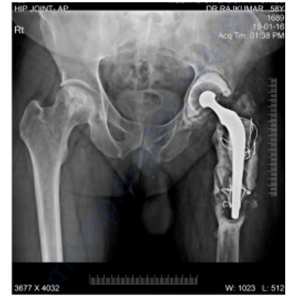 X ray left hip bone 1